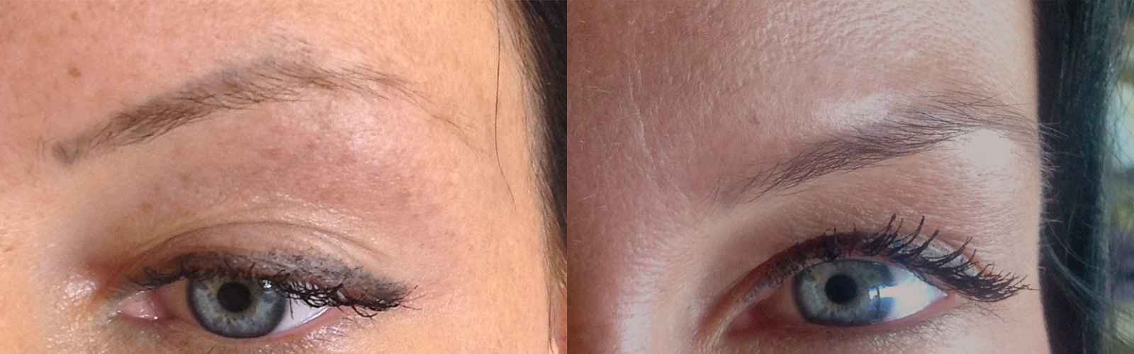 Stem-Cell-Brows-Before-After-1
