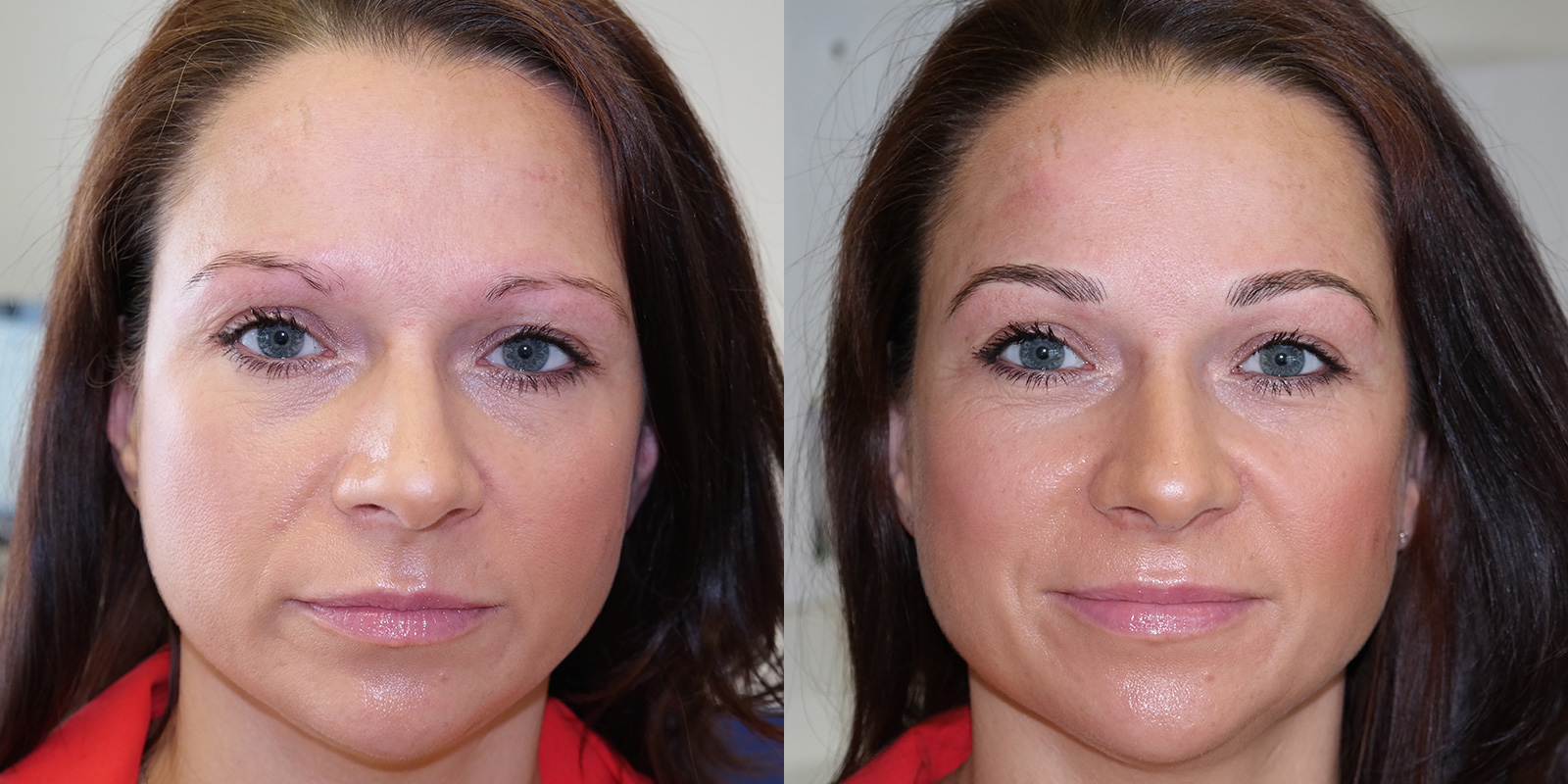 Permanent-Eyebrows-Melissa-Before-After