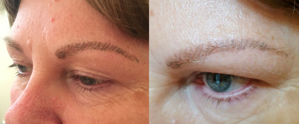 Permanent-Eyebrows-Removal-Lightening-1