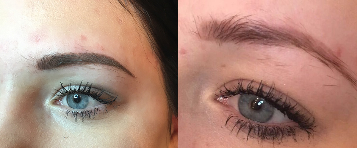 Permanent-Eyebrows-Removal-Lightening-2