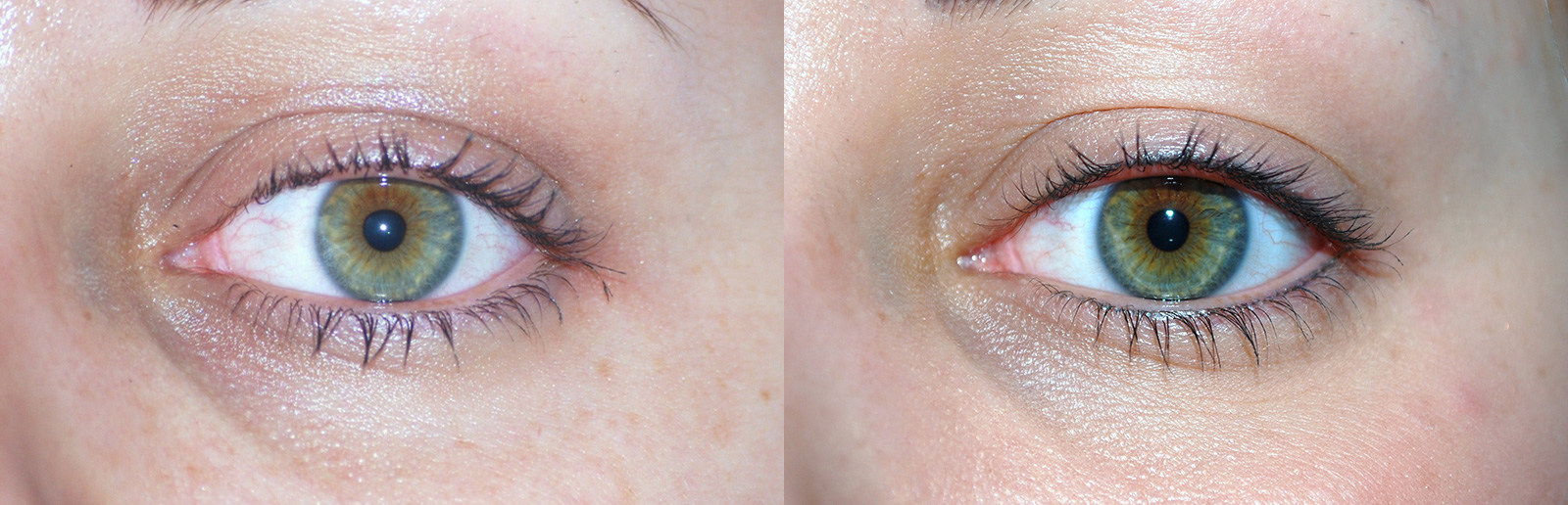 Permanent-Eyeliner-Before-After-2